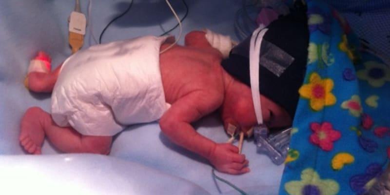 Také Ríša se narodil předčasně.