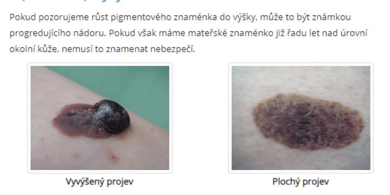 Jak rozpoznat melanom kůže?
