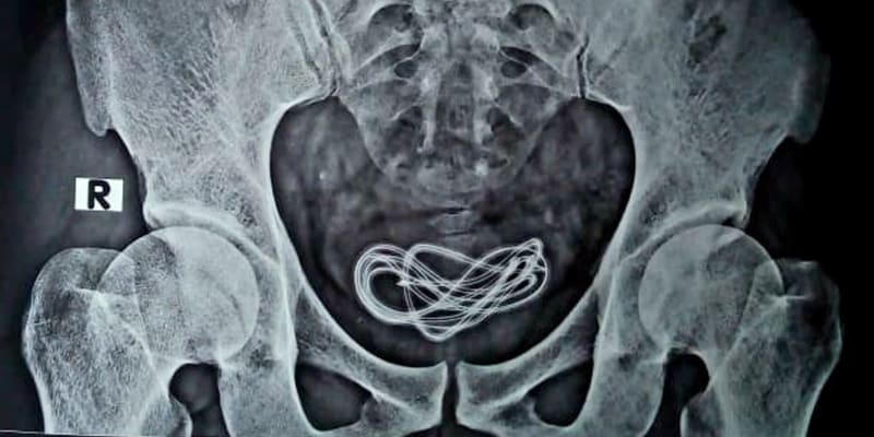Rentgen odhalil, že má muž dvoumetrovou nabíječku v močovém měchýři.