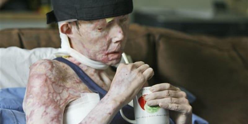 Carmen Tarletonová v roce 2008 před první transplantací