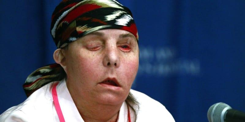 Carmen Tarletonová v roce 2013 po první transplantaci obličeje
