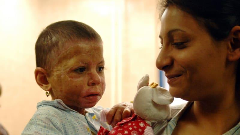 Deset let od exemplárních trestů pro žháře: Popálená Natálka má pořád v očích hrůzu