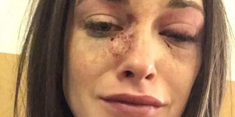 Paige Middlehurstová na Facebooku detailně popsala, jak jí přítel zbil do bezvědomí