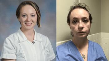 Před a po. Zdravotní sestry ukazují, jak je změnily těžké směny během pandemie
