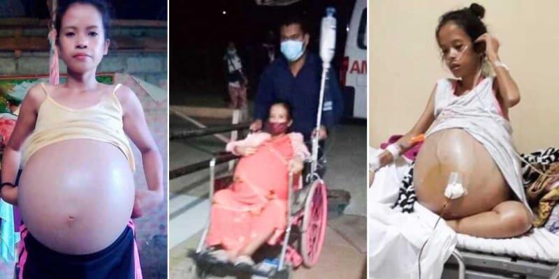 Vypadalo to, že je těhotná. Nellyn Joy Amasová má v těle nádory vážící 90 kg.