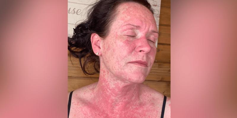 Kadeřnice Leigh Kingová si po očkování proti covidu prošla hotovým peklem.