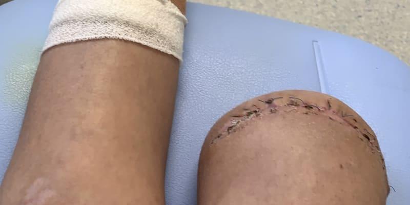 Amputace jí zachránila život.