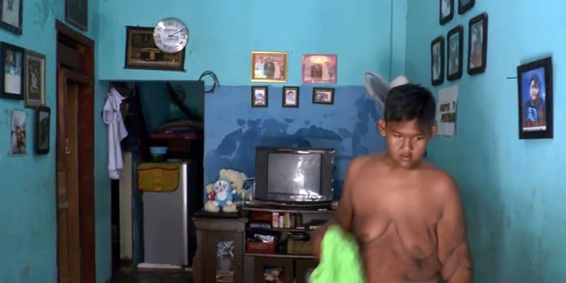Arya Permana zhubl za pět let přes sto kilogramů.