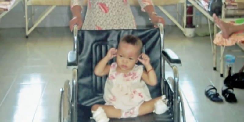 Doktoři ve Vietnamu museli Haven Shepherdové amputovat nohy pod kolenem. Zázrakem však bylo, že vůbec přežila.